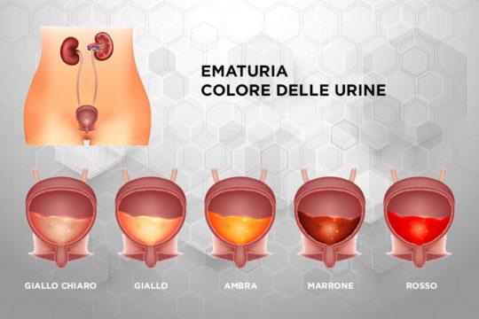 Patologie_Ematuria