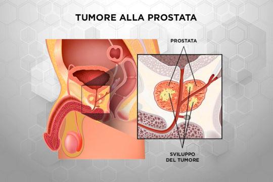 Patologie_Tumore_Prostata