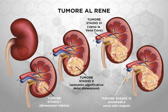 Patologie_Tumore_Rene